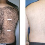 驚くべき医療レーザー脱毛の効果!男の場合は、病院がおすすめ?