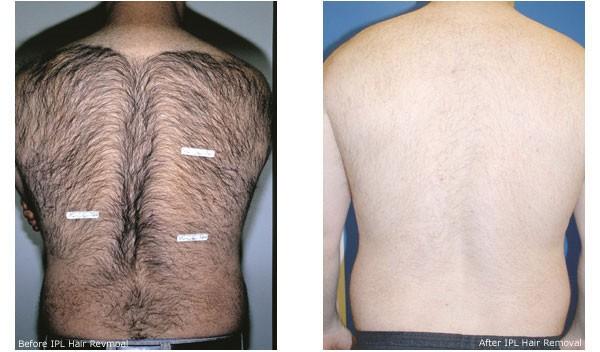mens-laser-hair-removal